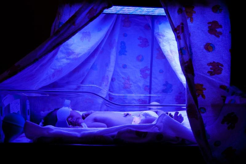 Neugeborenen-Gelbsucht