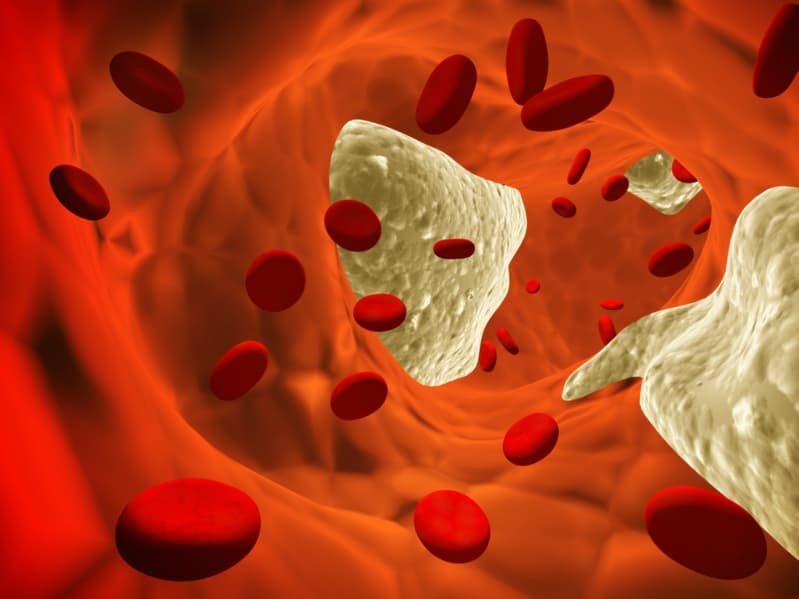 Gefährliche Blutgerinsel