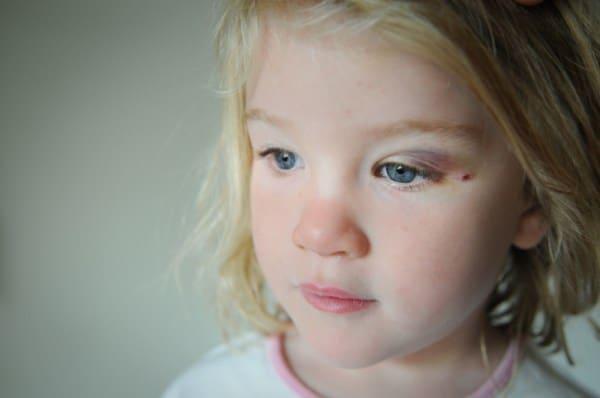 Mädchen mit blauem Auge