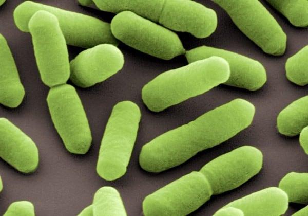 Listerien - elektronenmikroskopische Aufnahme von Listeria monocytogenes. © Helmholtz-Zentrum für Infektionsforschung, Braunschweig.