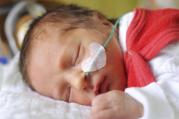 Auswirkungen von Vollnarkosen vor dem zweiten Lebensjahr (© Thinkstock)