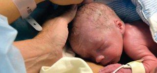 Vincent, das erste Baby, das in einer transplantierten Gebärmutter ausgetragen wurde. © mit freundlicher Genehmigung von The Lancelet