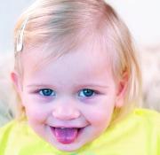 Kind im Alter von 27 Monaten