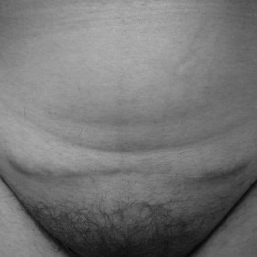 Kaiserschnittnarbe Foto Userin 015