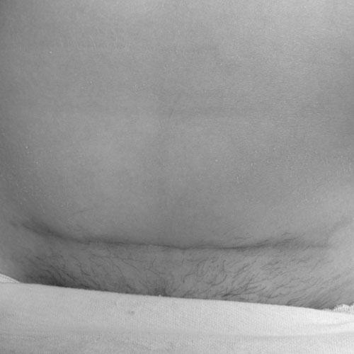 Kaiserschnittnarbe Foto Userin 023