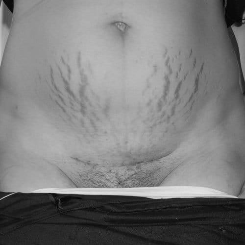 Kaiserschnittnarbe Eitert